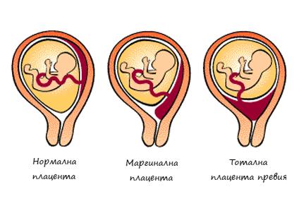 Плацента превия (предлежаща) – рисков фактор за бременността