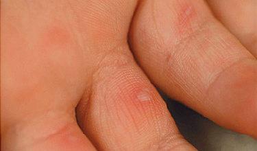Болестта ръка-крак-уста hand-foot-mouth