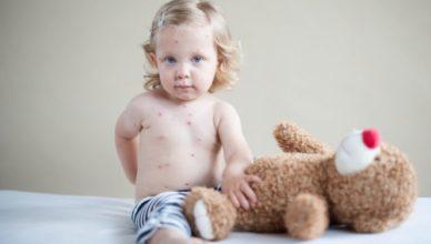 Новороденото и шарката – видове шарки, усложнения и лечение