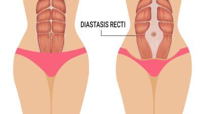 Диастаза след раждане